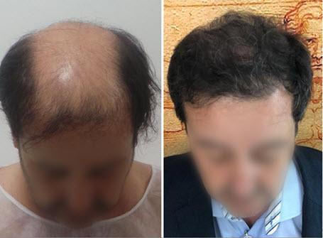 Unbelievable Confirmed Solution To Reverse Hair Loss And Grow Your HairNaturally